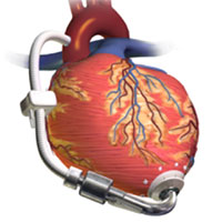CEPA Webinar-Left Ventricular Assistant Devices